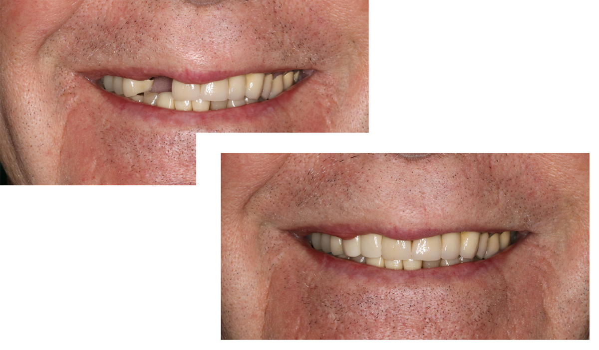Tooth Replacement Comparison